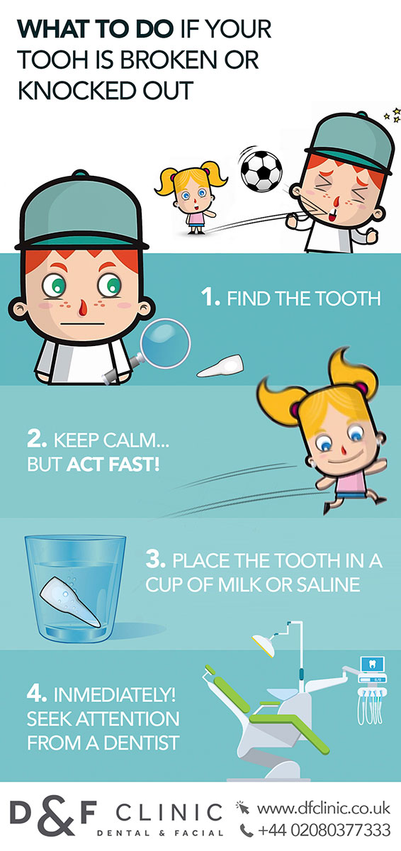 What to do when your child chips or knocks out a tooth